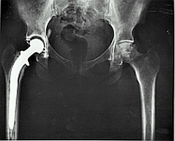 An X-ray showing an artificial hip